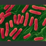 Epidemia da escherichia coli in Germania: ceppo mutato?